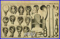 Framed Print 1800s Medical Equipment Obstetrical Forceps (Picture Child Birth)