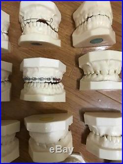 Lot Of Vintages Dental Casts