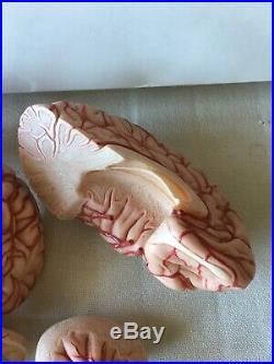 Vintage Somso Human Brain Model, Pre-owned